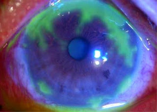A eye with corneal ulcer, eyes problems, blindness