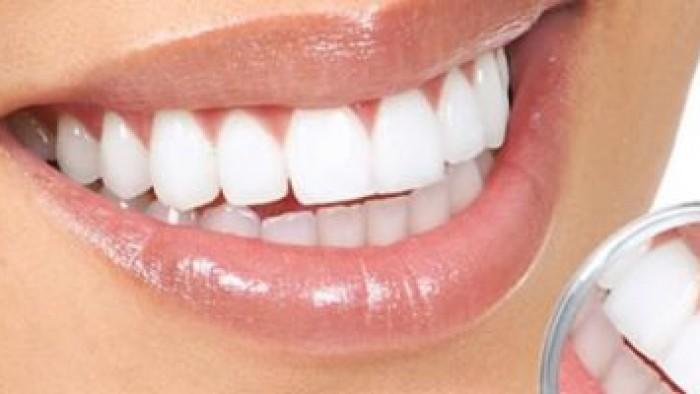 عملية قص اللثة - عملية قص اللثة بالليزر  - عملية قص اللثة بالليزر فى مصر - تجميل الاسنان باليزر - أبتسامة هوليود - استخدام الليزر فى عمليات الأسنان