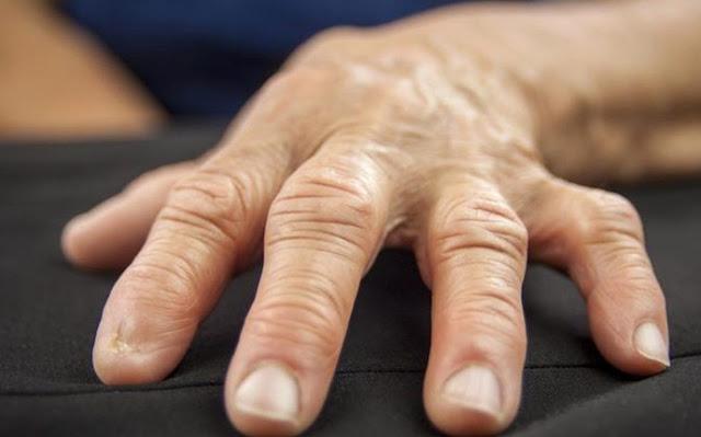 خمس وصفات طبيعية لعلاج الروماتيزم وآلام المفاصل