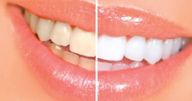 درس فوتوشوب | شرح اسهل طريقة لتبيض الأسنان باستخدام برنامَج فوتوشوب