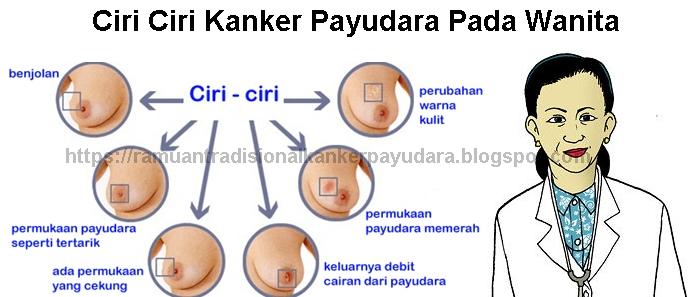 Ciri Ciri Kanker Payudara Pada Wanita Stadium Awal ...