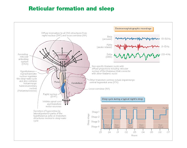 Reticular Formation And Sleep, EEG patterns during states of consciousness and slow-wave sleep, Neural mechanisms of sleep, Sleep disorders, Obstructive sleep apnoea syndrome, Narcolepsy, Hypersomnia (daytime sleepiness), Management of insomnia, Insomnia