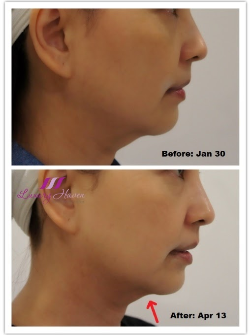eha clinic diamond polar double chin treatment review