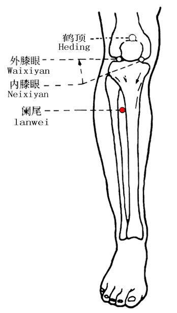 闌尾穴位 | 闌尾穴痛位置 - 穴道按摩經絡圖解 | Source:zhongyibaike.com