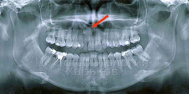 ретинированный клык на рентгене