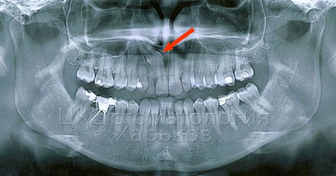 Брекеты вытянуть зуб из десны