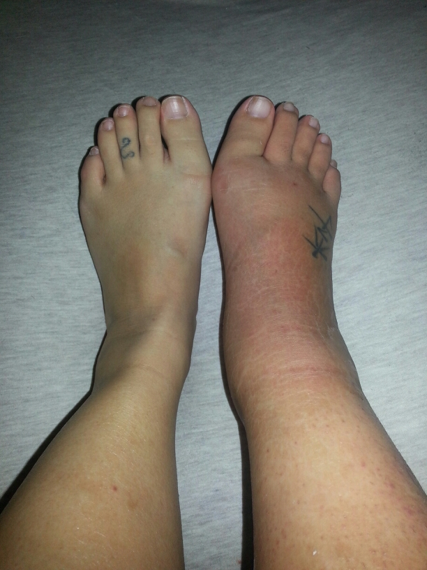 My Broken Ankle =(: Day 4 - Very swollen and red