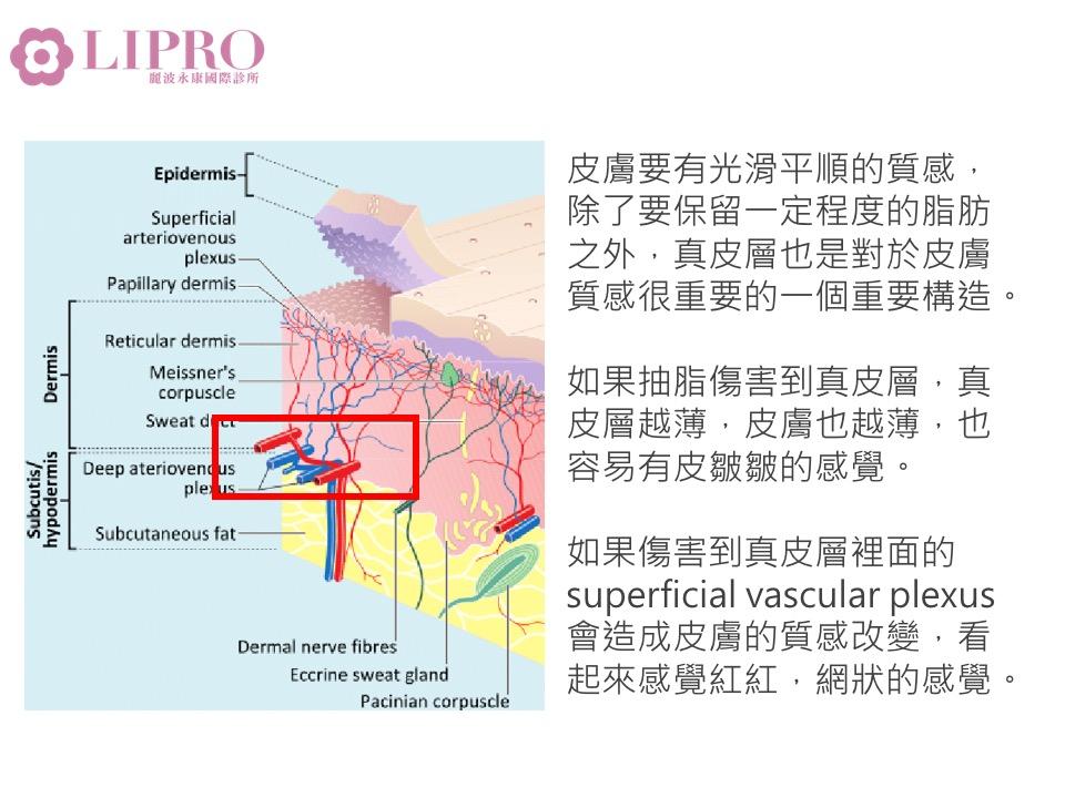 抽脂凹凸不平 抽脂凹凸不平怎麼補救 抽脂後遺症 抽脂失敗 抽脂恢復期