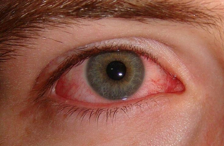 Cara Mengatasi Dan Mengobati Mata Merah Dan Gatal
