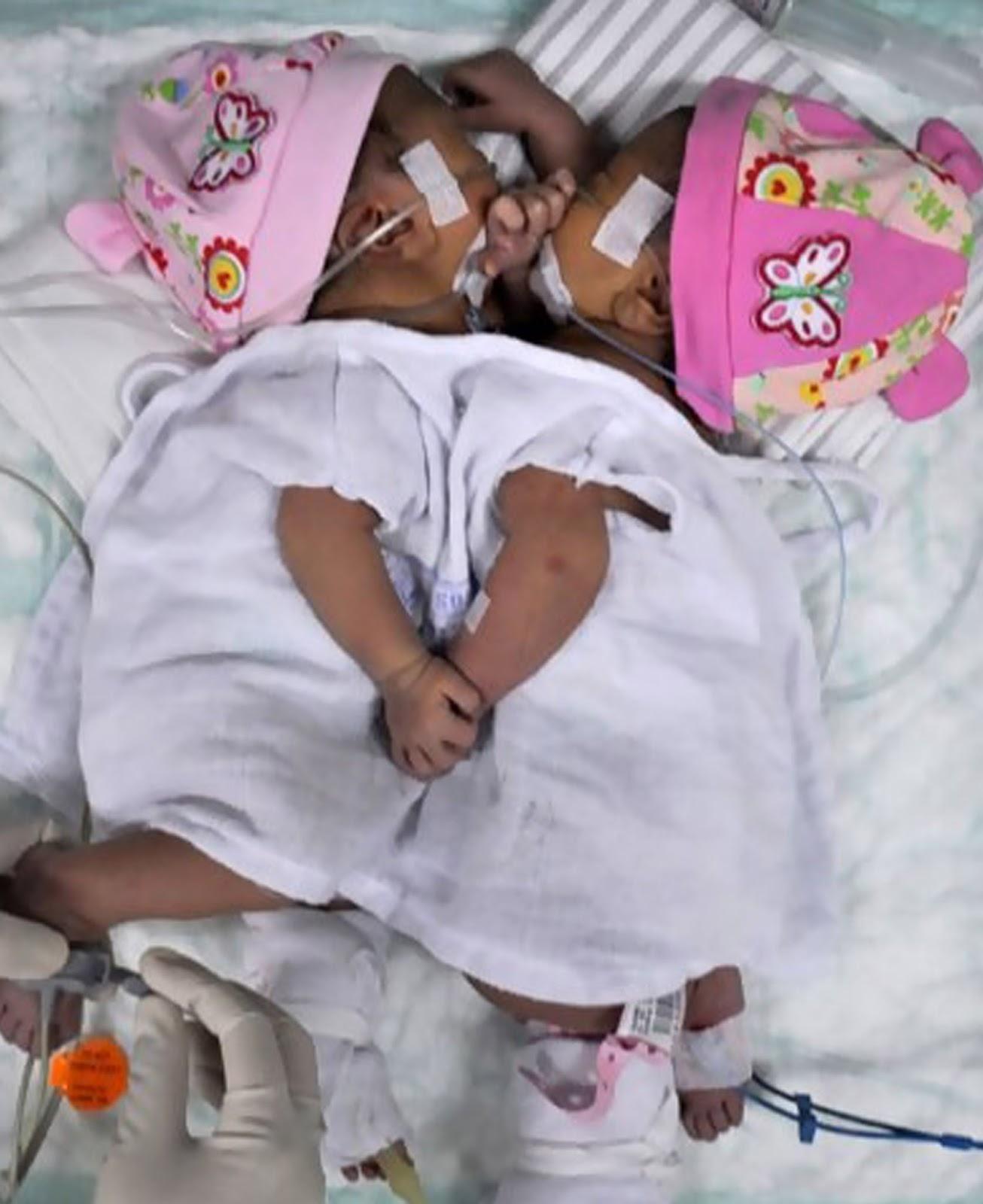 Bayi kembar siam dari Asahan  Fahira dan Sahira