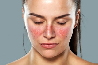 Obat Penyakit Lupus yang Paling Aman