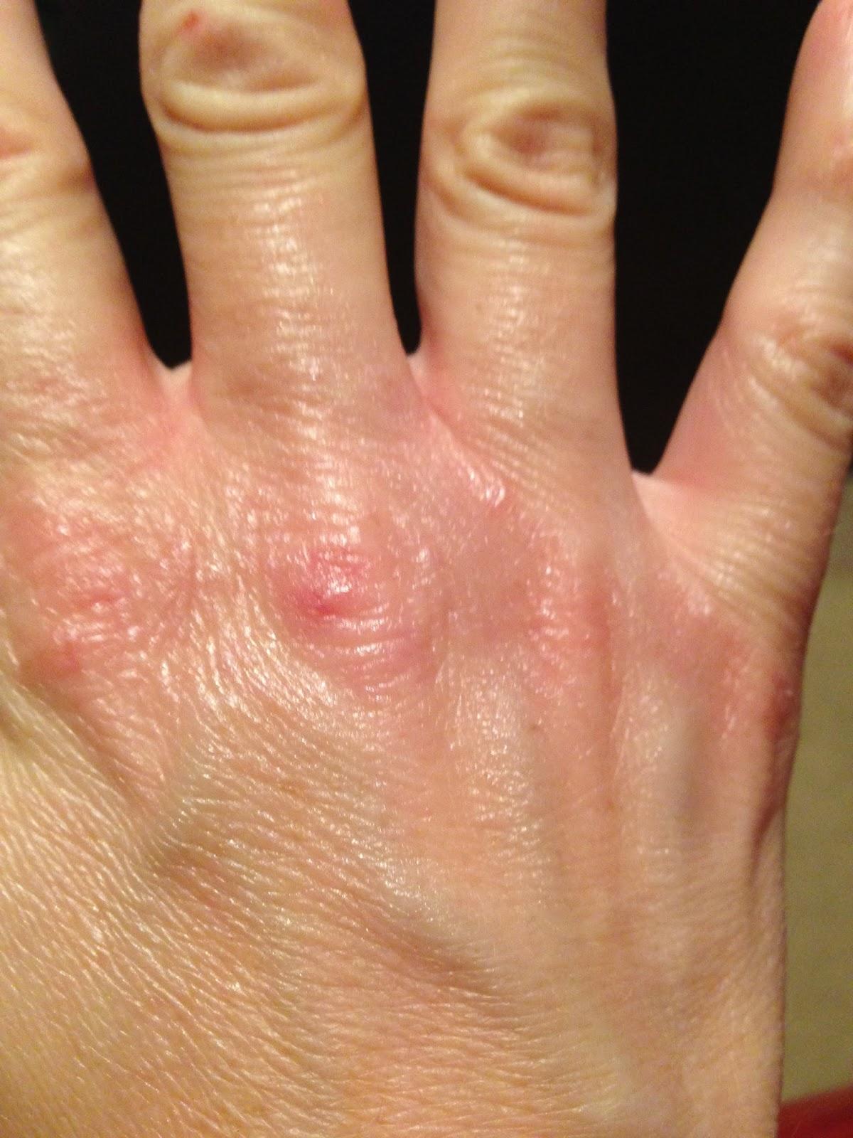 dry wrinkled skin on hands