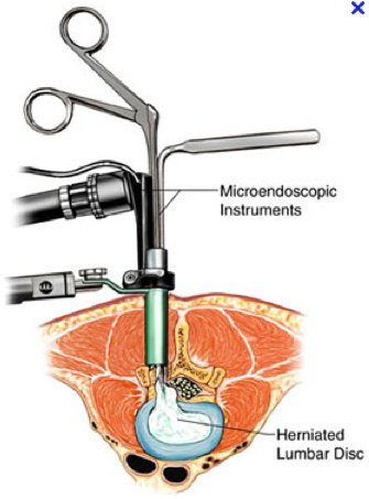 Myspinesolution What Is Quot Minimally Invasive Spine Surgery Quot