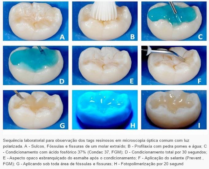 ODONTOPEDIATRIA: Protocolo clínico para aplicação do selante de fóssulas e fissuras
