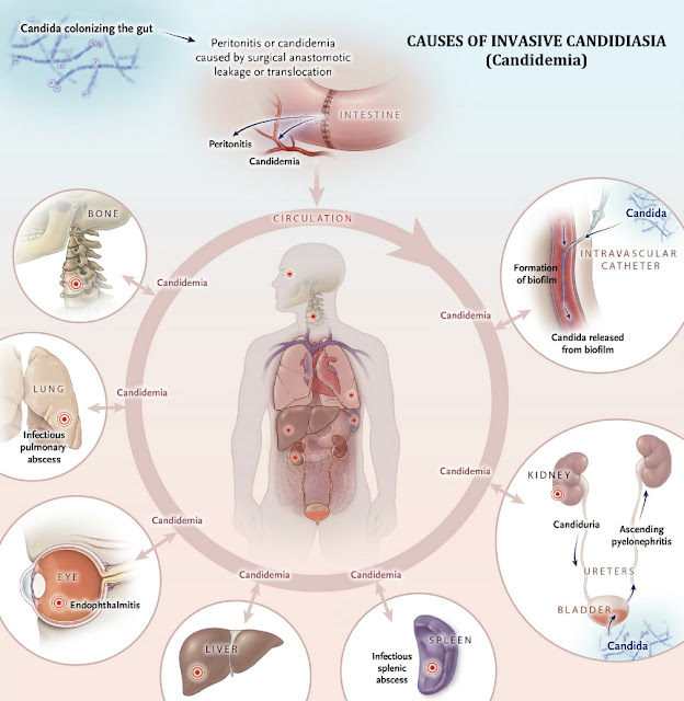 Invasive Candidiasis Causes