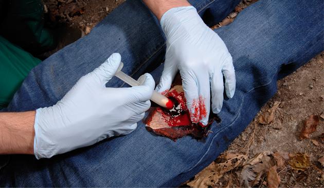 Кровоостанавливающие препараты в стоматологии