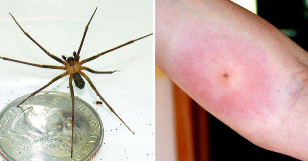 How To Recognize All 12 Most Common Bug Bites