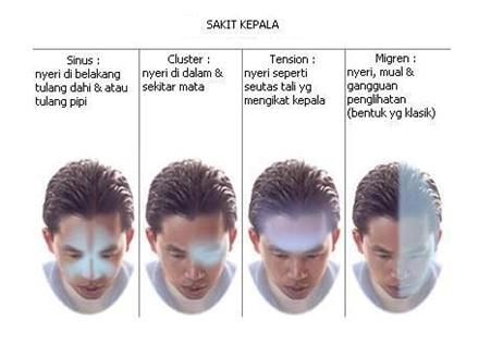 Cara menghilangkan sakit kepala dengan mudah