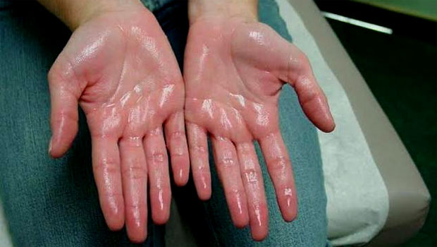 Tutorial Sehat Mengatasi Keringat Berlebihan pada Telapak Tangan