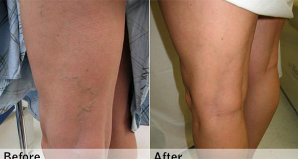 inflamatia premergatoare aparitiei varicelor poate fi vindecata cu usturoi
