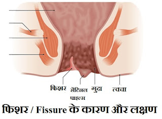 fissure-causes-symptoms-treatment-hindi