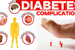 Diabetes Complications that You Should Know