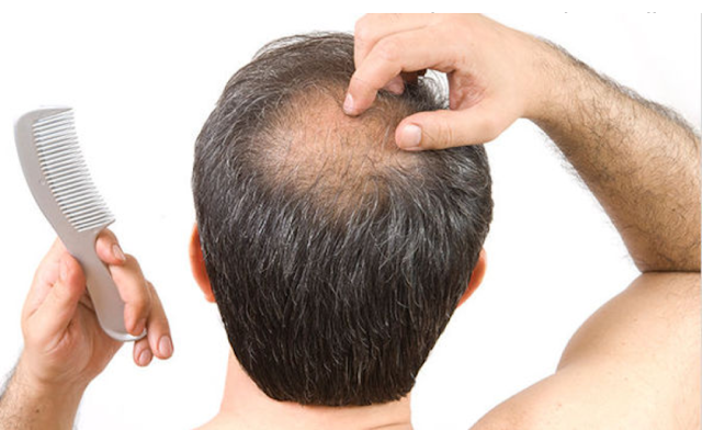 5 SIMPLE WAYS TO PREVENT HAIRFALL