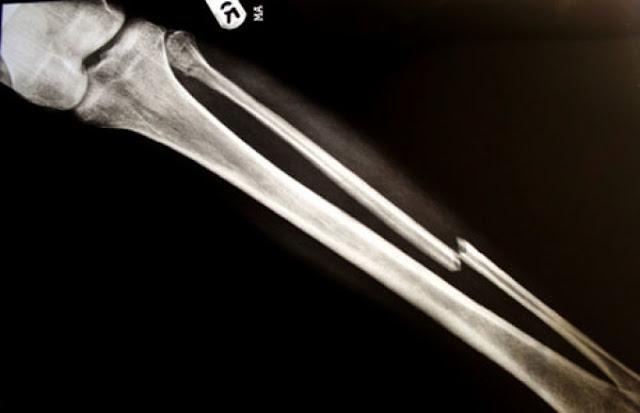 دراسة تؤكد ضرورة قياس السيدات بهشاشة العظام فى سن مبكرة