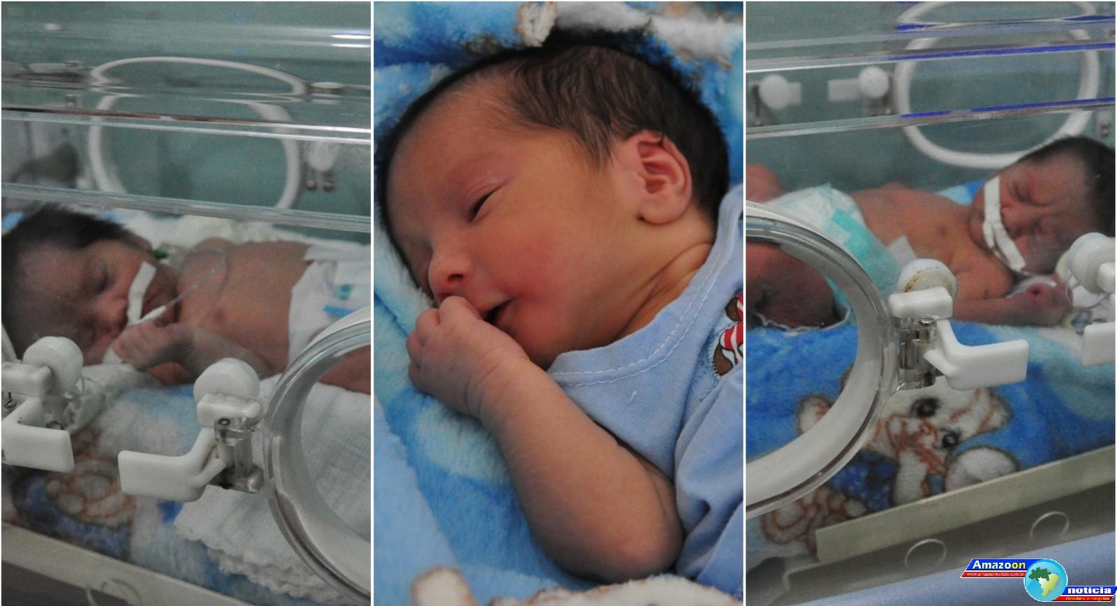 Jovem Grávida de Óbidos dá à luz trigêmeos em parto complexo em Santarém: 'questão de minutos', diz médico