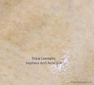 Trisia Cosmetic  Sophora Anti Acne Gel