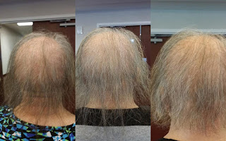 380453c966a MONAT Global Revolutionary Hair Care Products: Amazing MONAT Before ...