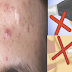 How Pimples Are Formed: 9 Pimple Facts You Might Not Know