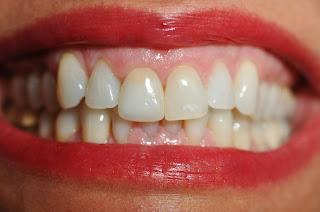 Number 1 Smile The Cosmetic Dental Blog J Brown