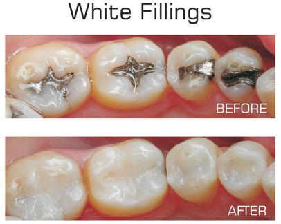 The Windsor Dental Blog: White Fillings Vs Silver Fillings