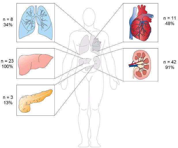 図:くも膜下出血からの臓器提供