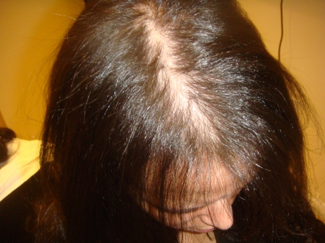 Cosmetics: CAUSES OF WOMEN HAIR LOSS