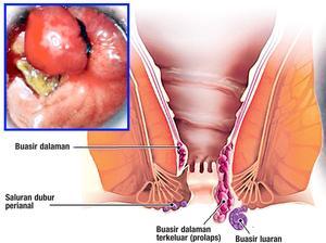 Image result for Buasir ketika hamil dan berpantang
