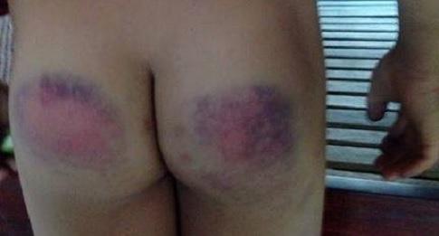 Gia Lai: Trần tình của cô giáo đánh 12 học sinh tiểu học