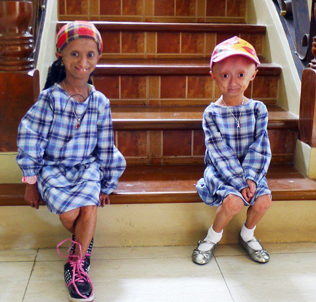 Philippine young girls suffering from progeria body age up to 144 years old