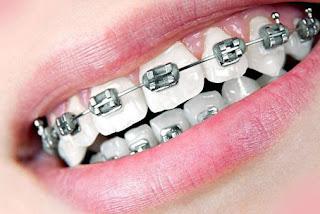 عيادات تقويم الاسنان في دبي