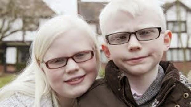 Sungguh Miris, Kisah Hidup Manusia Albino Yang Hidup Dalam Bayangan Kematian