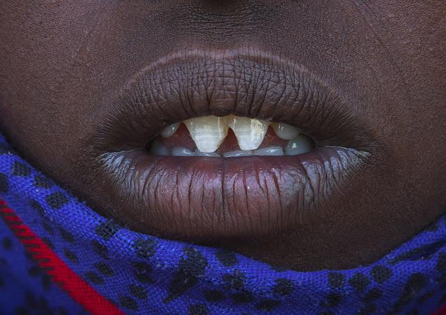 close up φωτογραφίες του εφήβου μουνί