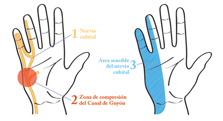 Resultado de imagen para Síndrome del canal de Guyon