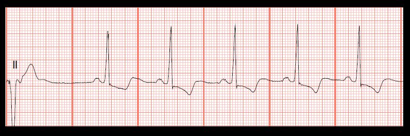 Float Nurse: Practice EKG Strips 372