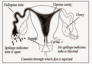 National Infertility Awareness Week, April 19-25, 2015