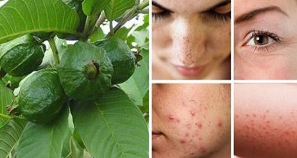 Use Guava Leaves to Beat Wrinkles, Acne, Dark Spots and Skin Allergies (How To Use)