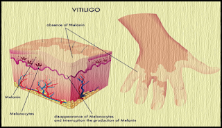 Noutati medicale VITILIGO medicament nou pentru tratament