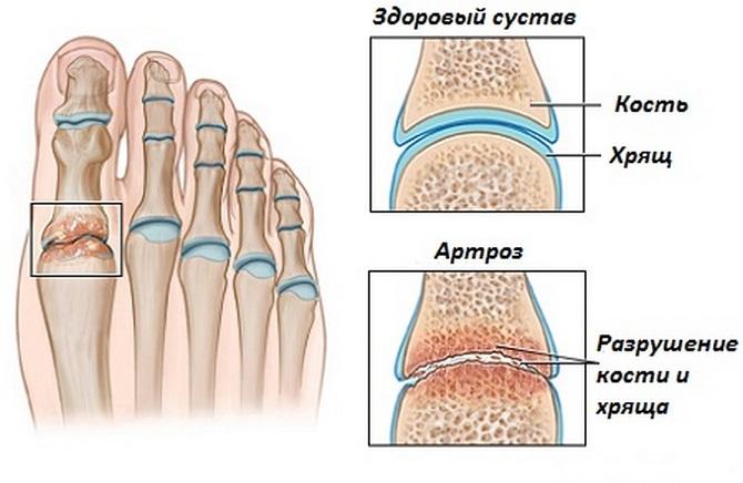 Артроз большого пальца ноги этиология клиническая симптоматика тактика лечения