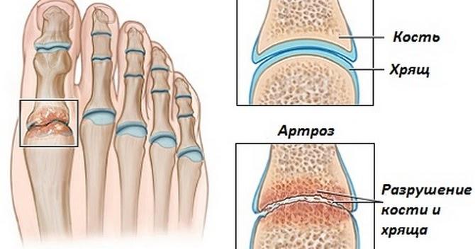Особенности лечения косточки на ногах лазером