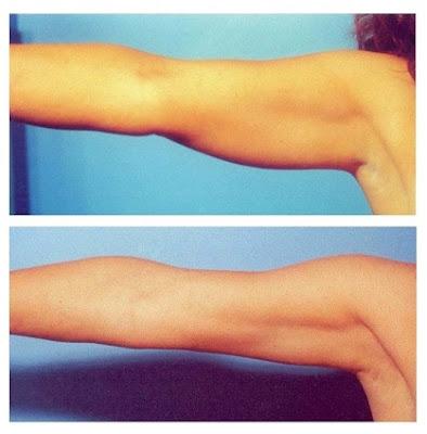 Éliminer la graisse dans les bras avec régime de 7 jours